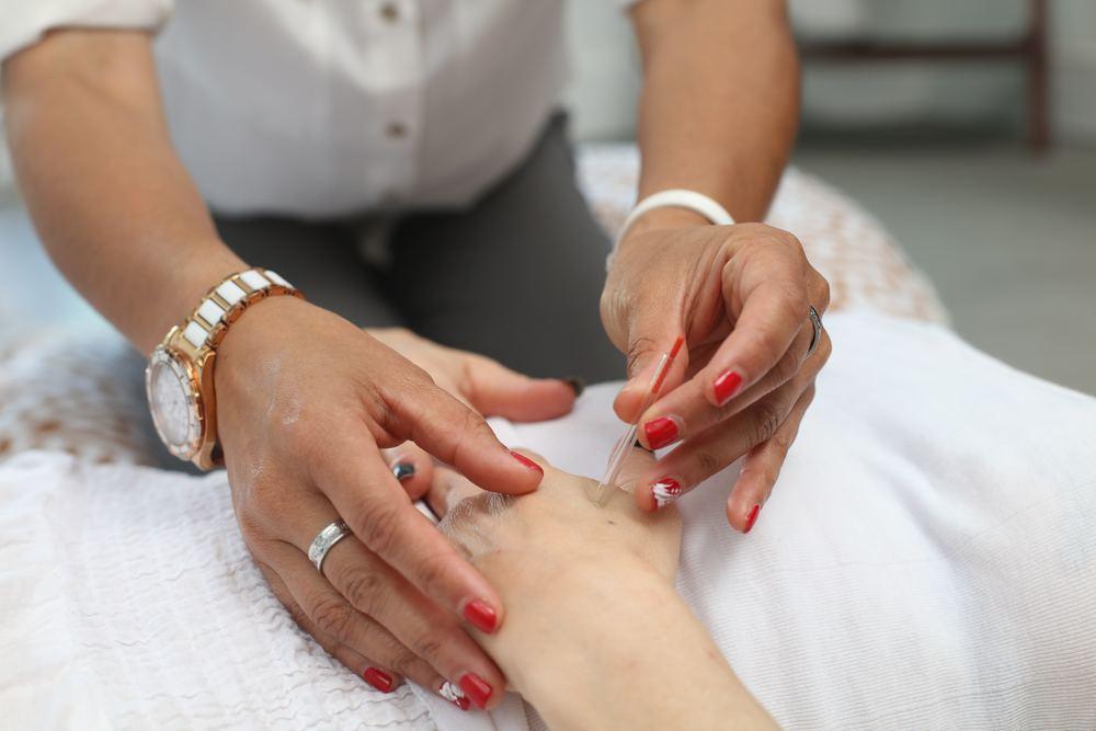 Akupunktur – en tusenårig metod med många fördelar
